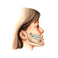 tratamentos (3)